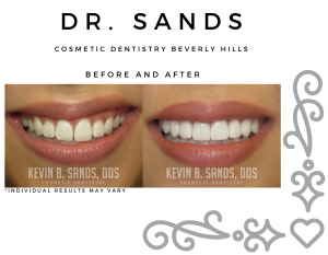 Before and after of a cosmetic dentistry patient in Beverly Hills
