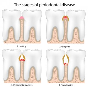 Drawing of teeth with 4 stages of periodontal disease, each in a separate corner: healthy, gingivitis, periodontal pockets, and periodontitis