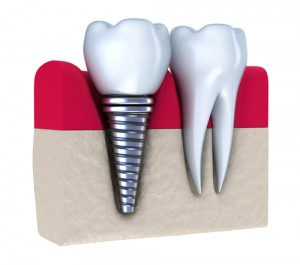 Dental implant in gum next to regular tooth in gum