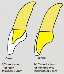 Comparison of porcelain veneers and caps