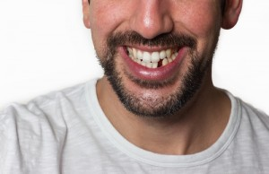 Close up of a man's lower face and shoulders, smiling with a missing lower incisor on a white background