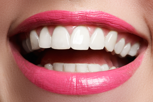 woman smile with great teeth-img-blog