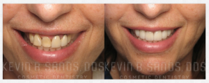 Are Bad Teeth Genetic?