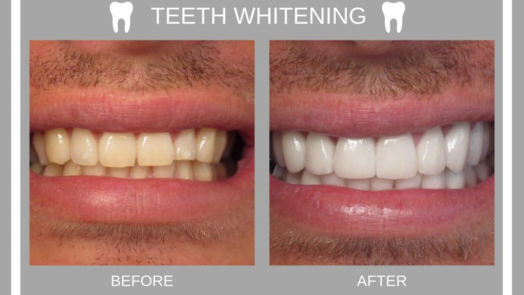 Everything You Need To Know About Teeth Whitening Dr Kevin Sands