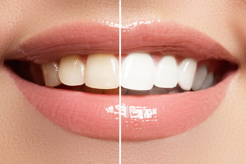perfect smile before and after bleaching. dental care and whitening teeth-img-blog