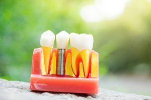Image demonstrating a dental implant