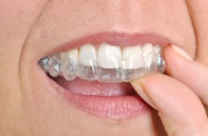 Woman Putting Invisalign® In Her Mouth