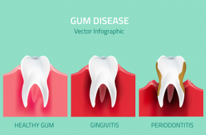Teeth infographic. Gum disease stages