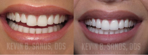 combination of Porcelain Veneers and Zoom whitening by Dr. Sands