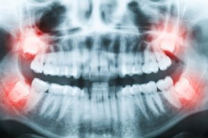 Closeup of x ray image of teeth and mouth with all four molars vertically impacted