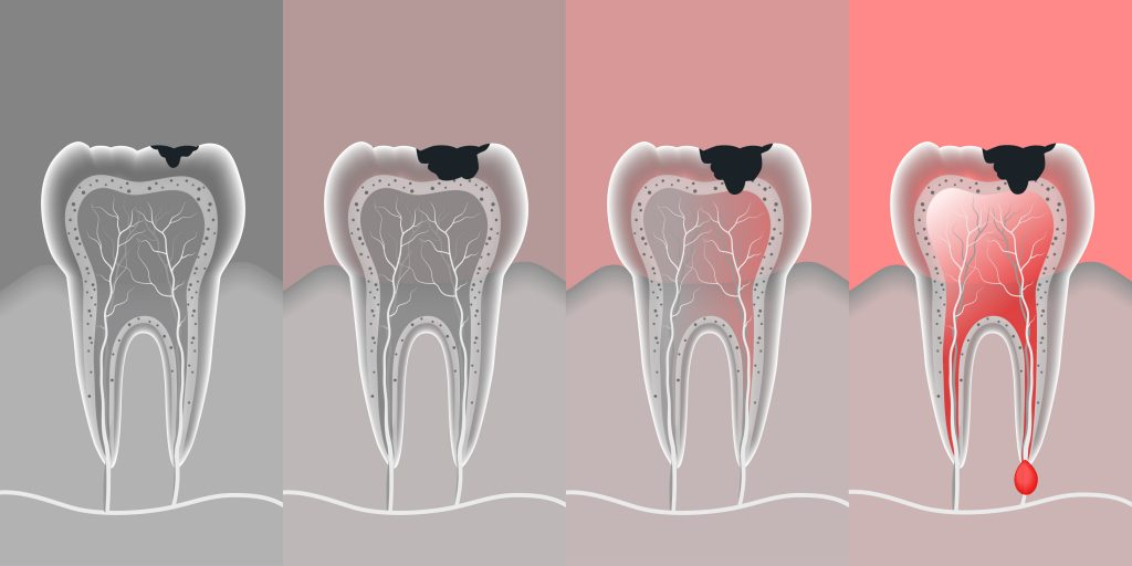 process teeth problem with vector-img-blog