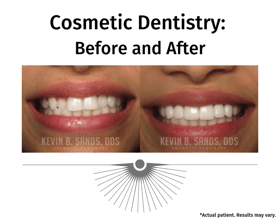 A before and after image of a patient who had work performed on their teeth. There are different options to improve the aesthetic of your teeth.