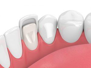 Artist Rendering of Dental Veneer Fitting