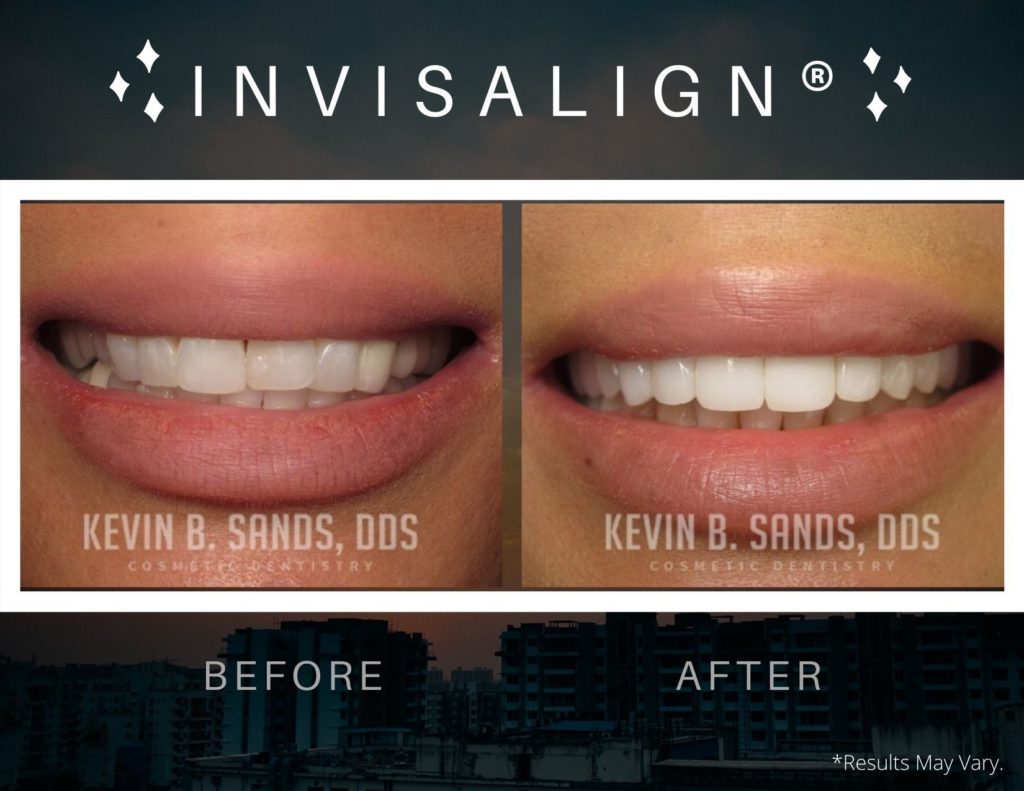 before-and-after-invisalign-dks-p57-a-dks-p57-b