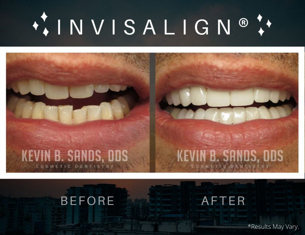 before-and-after-invisalign-dks-p58-a-dks-p58-b