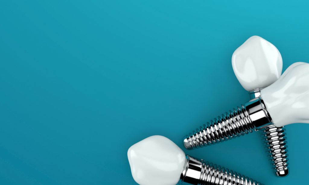 anatomy of the dental implants including the root and the prosthetic tooth