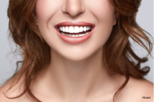woman with beautiful smile ho has benefited from dental bonding and fillers-img-blog