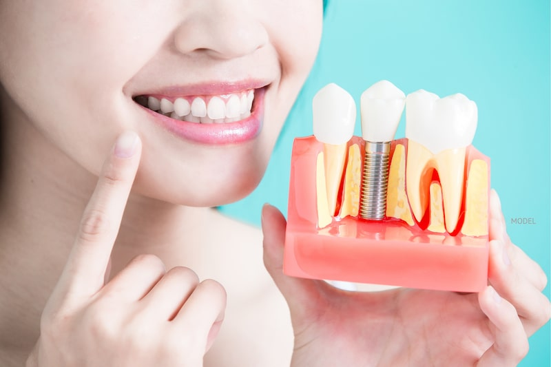 Woman pointing to her teeth while holding a model of a dental implant against a blue background.